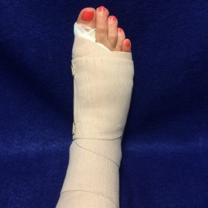 Da Vinci Foot & Ankle Bunion Surgery Dressing