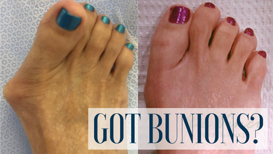Bunion Surgery – Is it right for you?