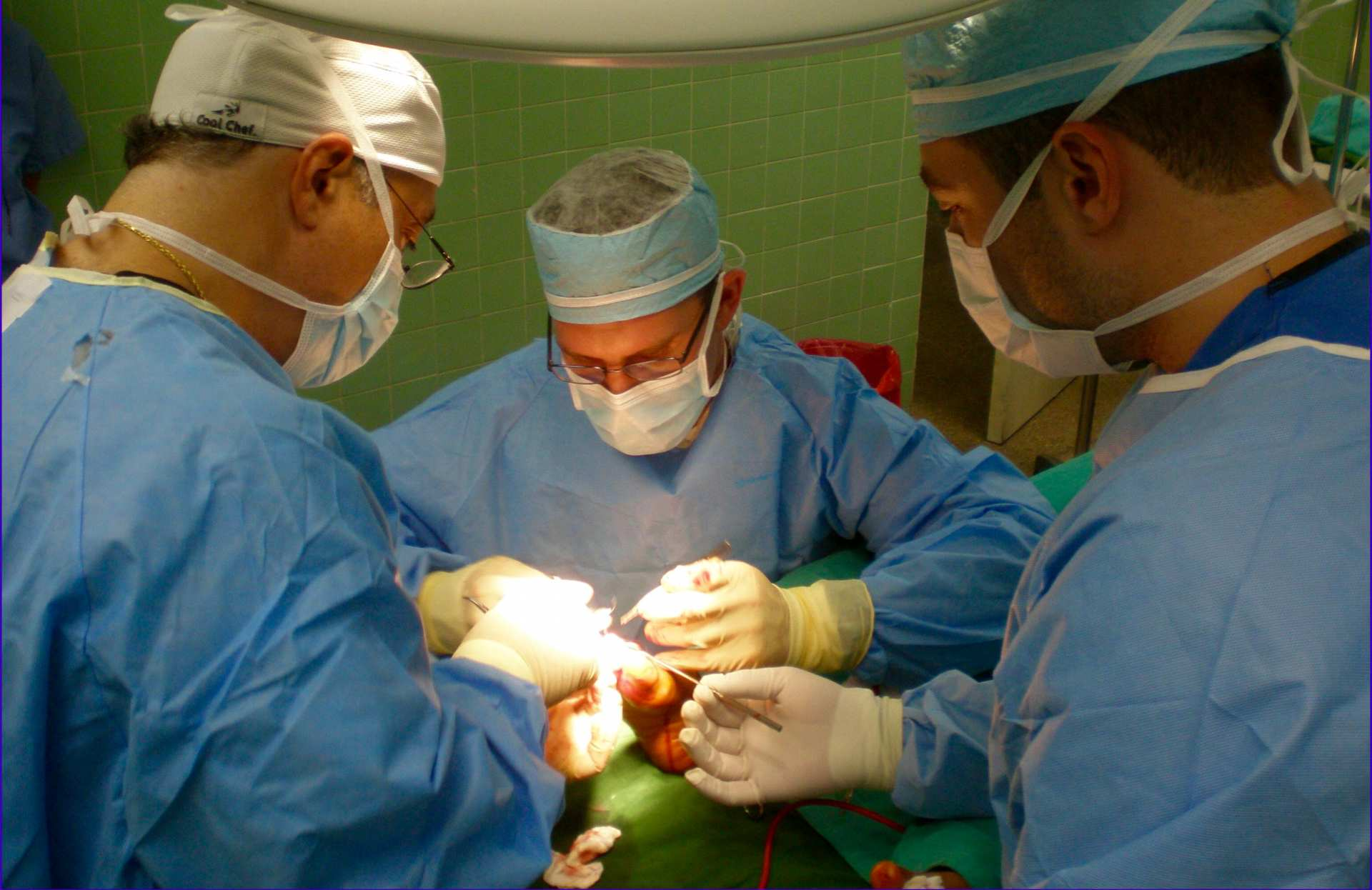 Images of Bunions