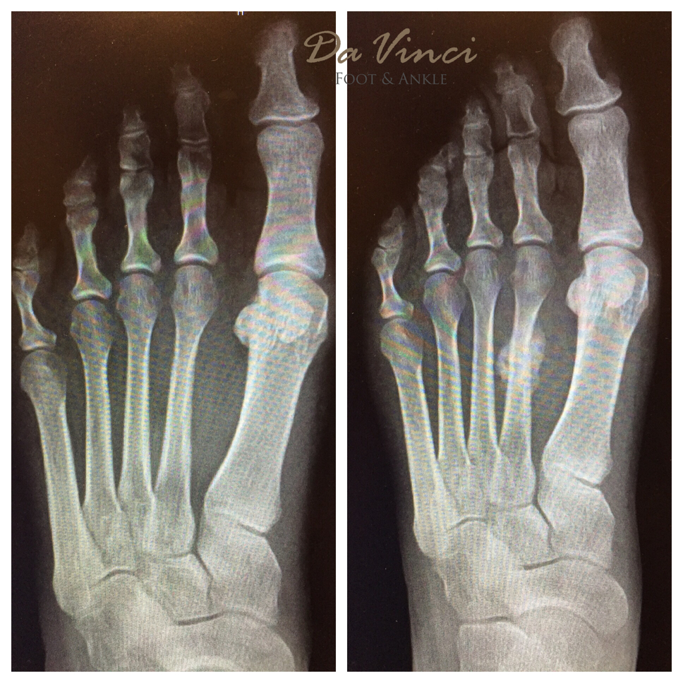 Da Vinci Foot and Ankle Metatarsal Stress Fracture