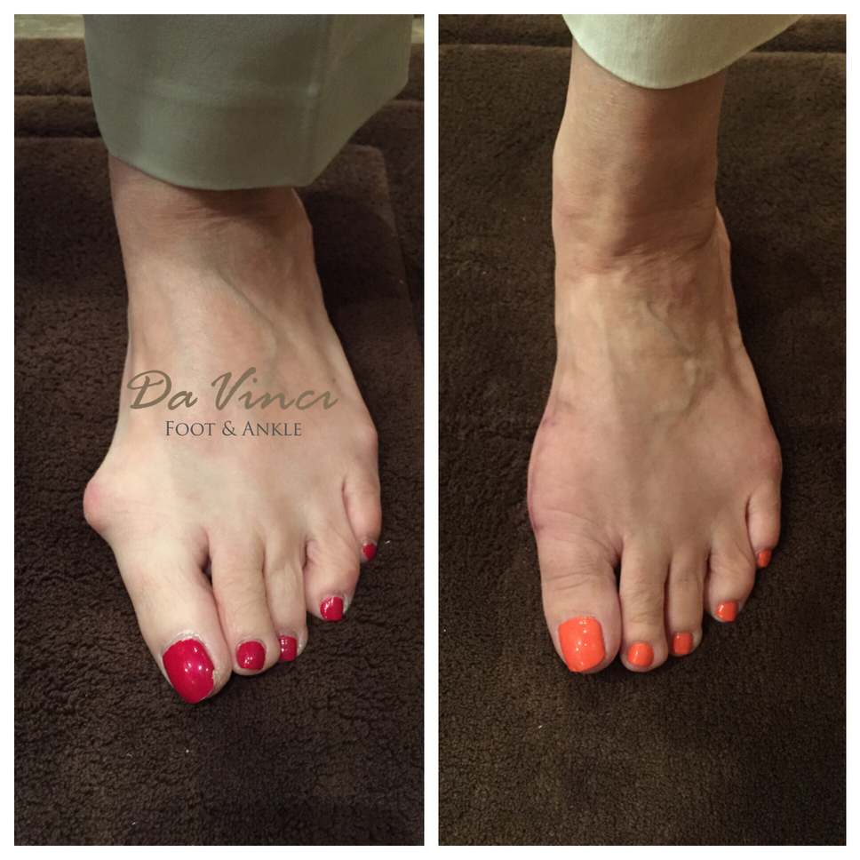 Da Vinci Foot and Ankle Bunion Surgery