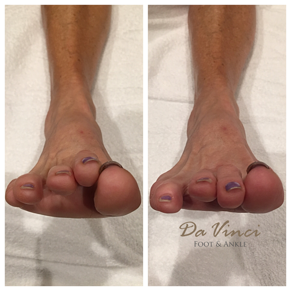 Da Vinci Foot and Ankle Hammertoe Surgery