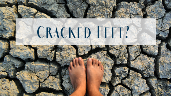 Dry, Cracked Feet? Here are Solutions!