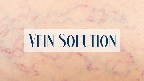 Vein Solution- Laser Treatment for Unsightly Veins