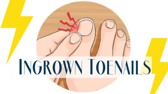 Ingrown Toenail Causes and Treatment
