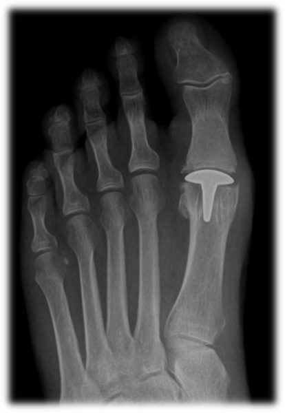 Da Vinci Foot and Ankle Big Toe Joint Replacement