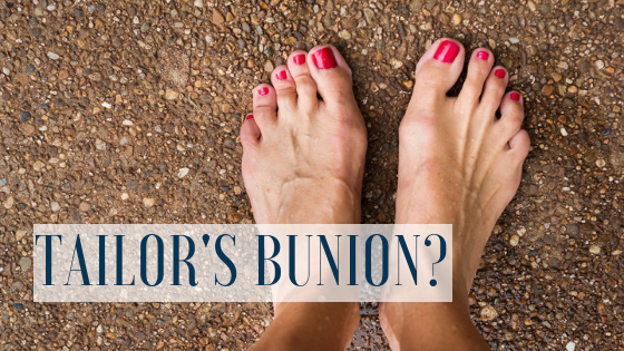 Tailors Bunion – How We Can Help!