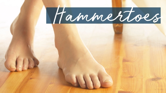 "Hammertoes – We have an ""easy button"" for those!"