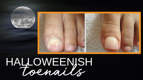 Are Your Toenails Halloween-ish?