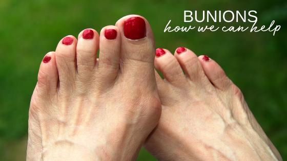 All About Bunions – Pain, Surgery and Treatment