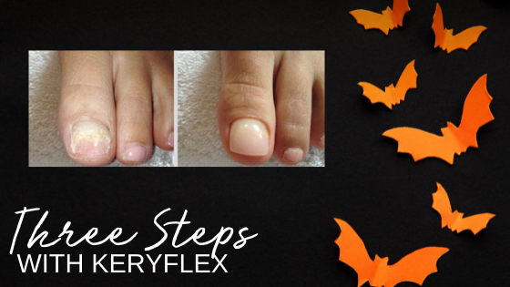 From Frightening to Beautifully Clear- Toenail Fix in 1, 2, 3…